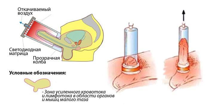 Методика проведения ЛОД терапии