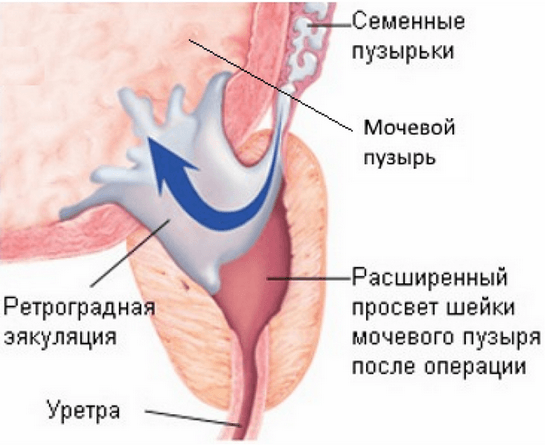 Как происходит мужская эякуляция?