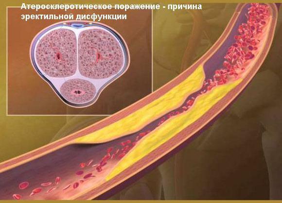 Атеросклеротическое поражение сосудов полового члена