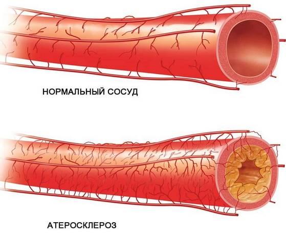 Нормальный сосуд и пораженный атеросклерозом