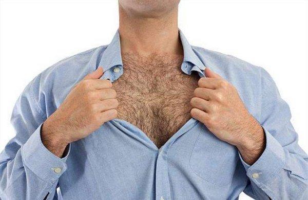 Гиперандрогения у мужчин