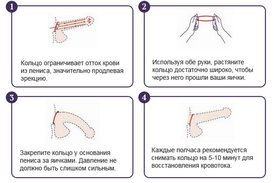 Инструкция по надеванию эрекционного кольца