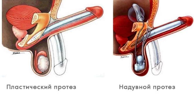 Пластический и надувной протез для фаллопротезирования