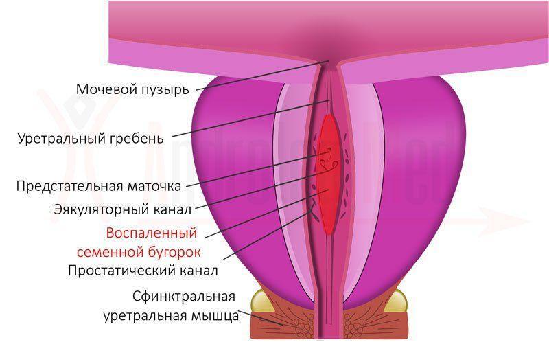 Колликулит у мужчин
