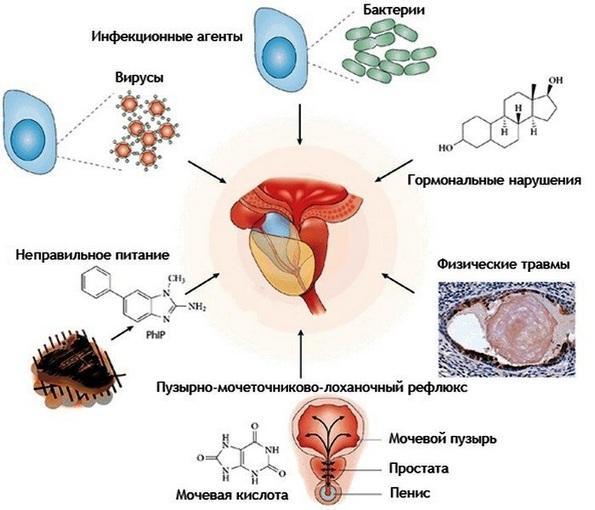 Возбудители бактериального простатита