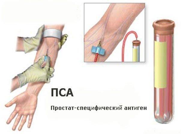Взятие крови из вены на анализы