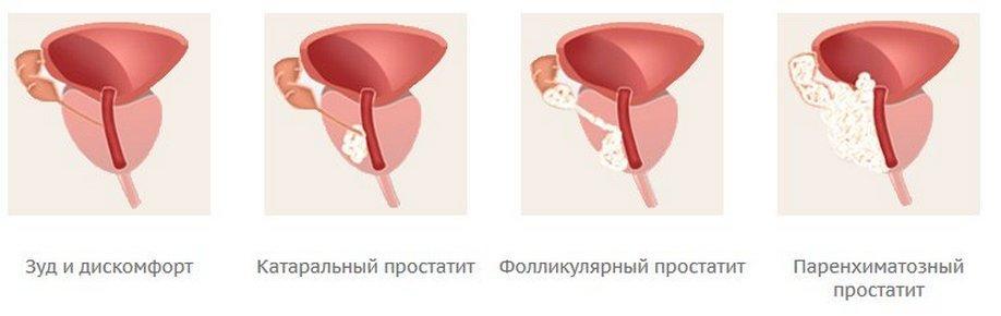 Стадии развития острого воспаления предстательной железы