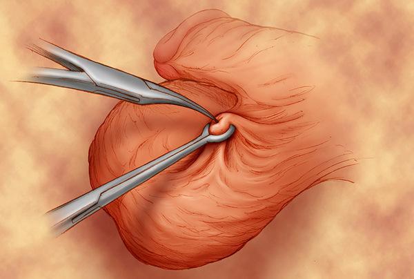 Вазэктомия (мужская стерилизация)