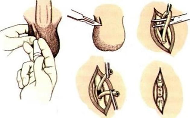 Вазорезекция