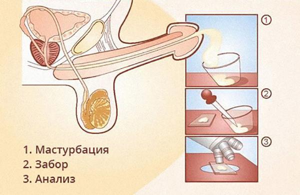 Этапы сдачи спермограммы