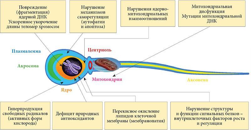 Окислительный стресс при лейкоспермии
