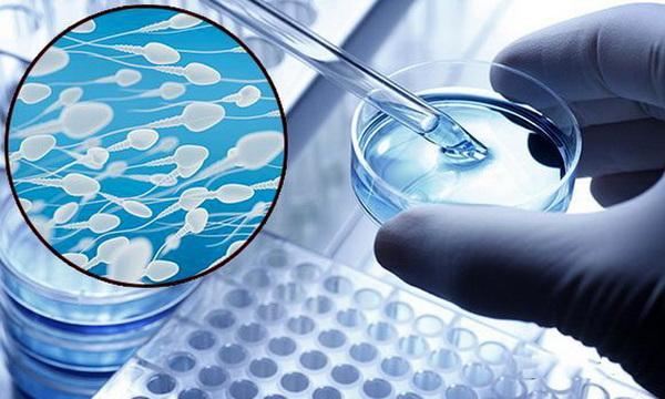 Плохая спермограмма у мужа: причины и как улучшить показатели