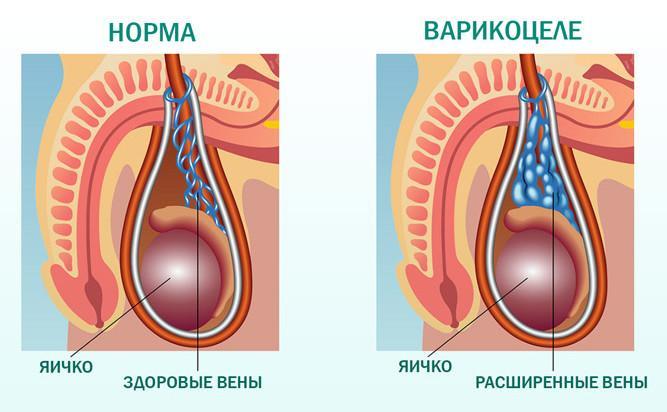 Мужское бесплодие: причины, симптомы и лечение в статье андролога Рыжков А. И.