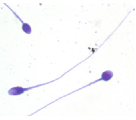 Окрашивание сперматозоида