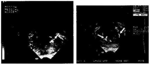 Эхограмма хронического простатита со скоплением амилоидных телец
