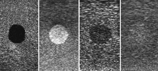 Типы тканей слева направо - анэхогенная, гиперэхогенная, гипоэхогенная, изоэхогенная