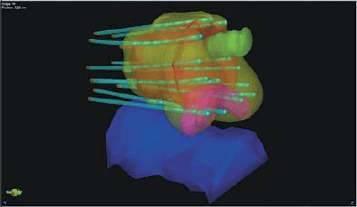 3D модель введения игл при высокодозной брахитерапии