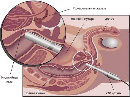 Биопсия под УЗ-контролем