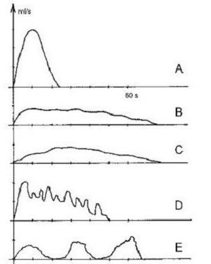 Графики (урофлоуграммы) при различных заболеваниях