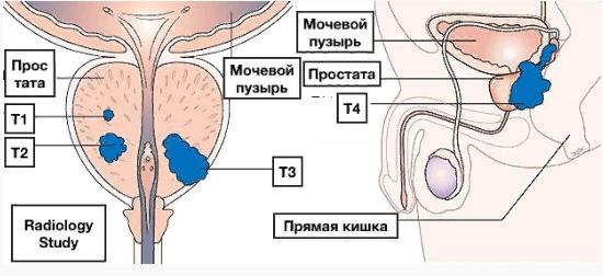Характеристика рака простаты по системе TNM