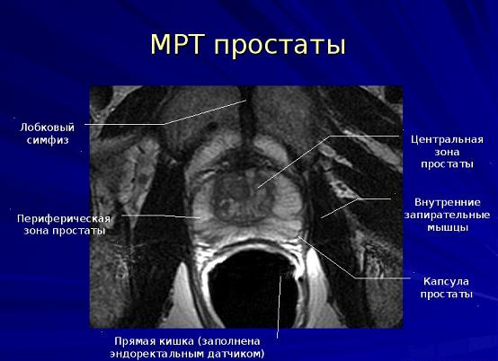 МР-анатомия простаты (с эндоректальным датчиком)