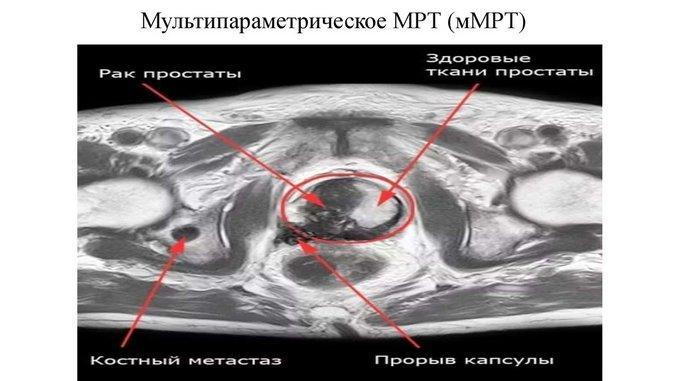 Мультипараметрическое МРТ