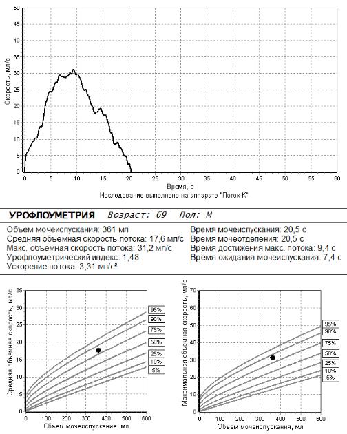 Пример результатов урофлоуметрии у мужчины 69 лет