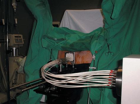 Проведение высокодозной брахитерапии