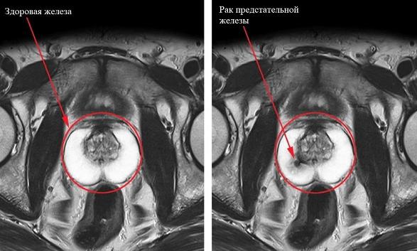 Рак простаты на снимках МРТ