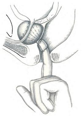 Секстантная биопсия под пальцевым контролем