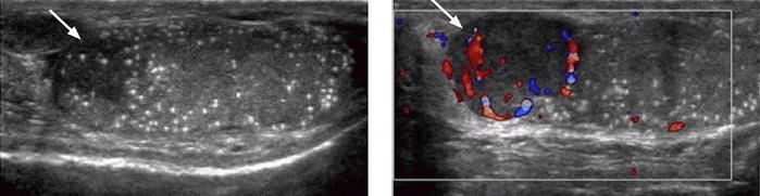 Семинома (рак), окруженная кальцификатами (обычное УЗИ и допплер)