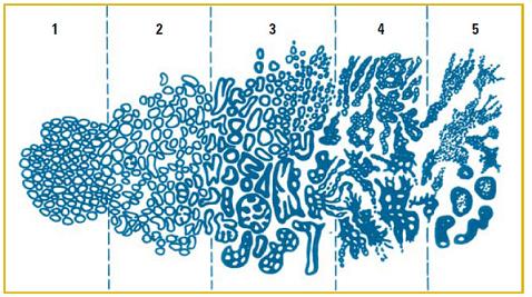 Внешний вид клеток по шкале Глисона