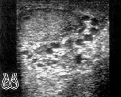 Вторая стадия варикоцеле