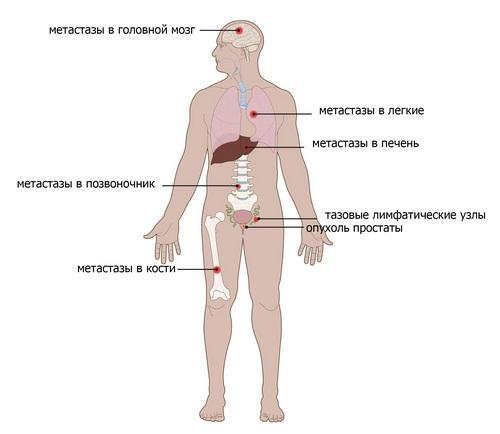 Метастазы в костях и органах при раке предстательной железы