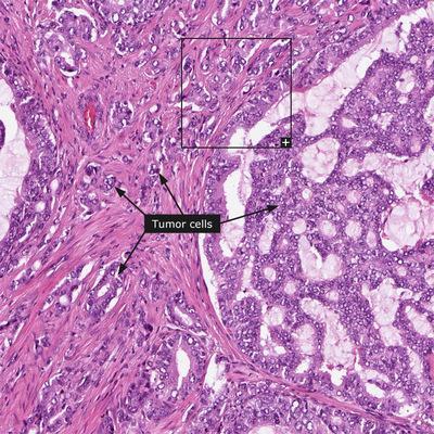Низкодифференцированная аденокарцинома предстательной железы