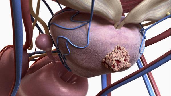 Аденома простаты у мужчин:что такое гиперплазия,от чего возникает, симптомы и первые признаки у мужчин,лечениепростатита и аденомы предстательной железы