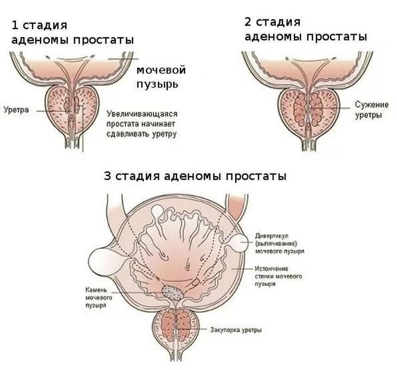 Три стадии развития аденомы предстательной железы