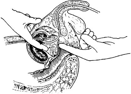 Схема надлобковой трансвезикальной аденомэктомии