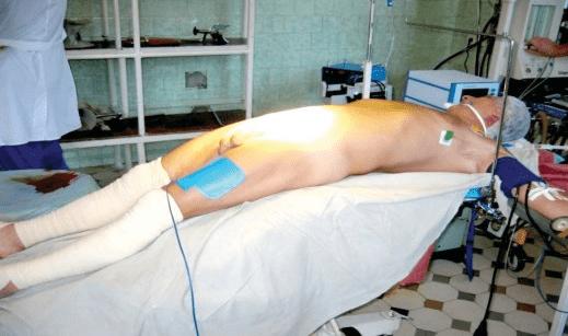 Положение пациента при проведении открытой аденомэктомии