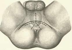 Схема разреза при промежностной простатэктомии