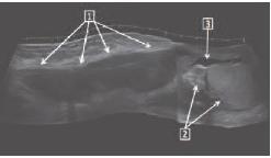 Эхограмма гнойного фуникулита (продольное сканирование мошонки)