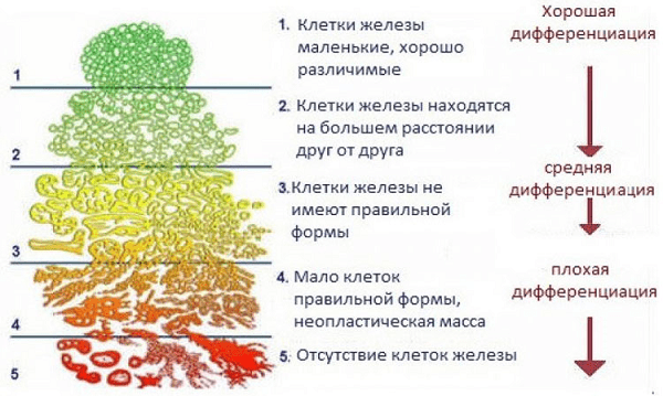 Модель шкалы Глисона