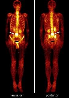 Остеосцинтиграфический снимок при раке простаты 4 стадии (стрелкой показан метастаз в 4 поясничном позвонке)