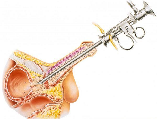 Урологический презерватив после операции на простате