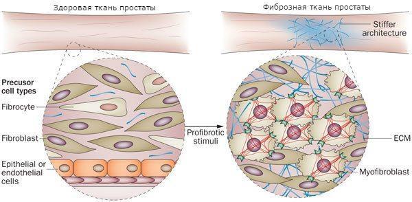 Здоровая и фиброзная ткань простаты