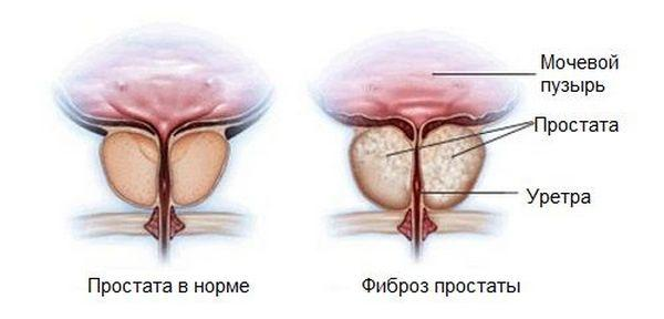 Фиброз предстательной железы