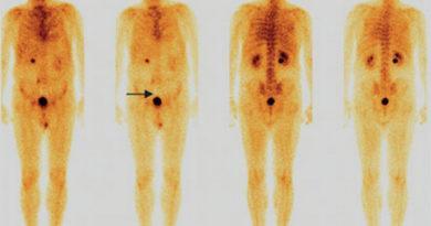 Остеосцинтиграфия при раке предстательной железы