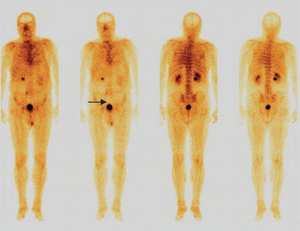 Сцинтиграфия костей вред для организма — Все про суставы