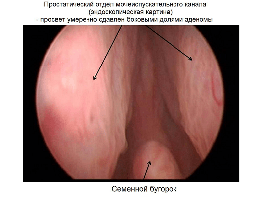 Простатический отдел мочеиспускательного канала
