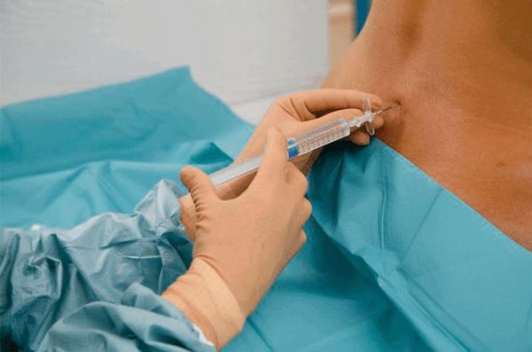 Спинномозговая анестезия перед ТУР